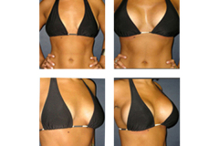 Breast-Augmentation New York City