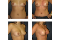 Breast-Augmentation-New-York-City