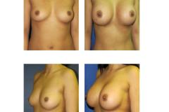Breast-Augmentation-New-York-Patient