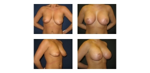 New-York-City-Breast-Lift-and-Implant-6