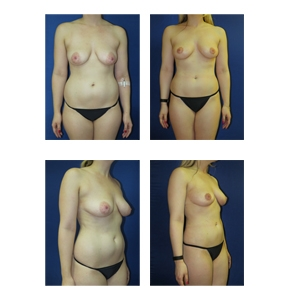 Breast-Lift-New-York-City-Patient-12-Thumbnail1